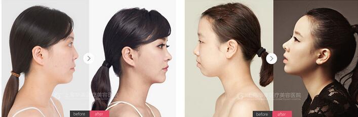 上海华美整形韩式小翘鼻3800元 整形案例对比图 韩式小翘鼻指定专家
